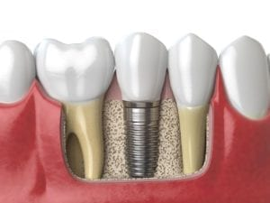 dental implants in washington dc