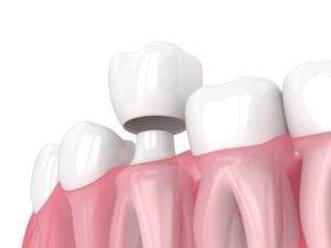 washington dc dental crowns