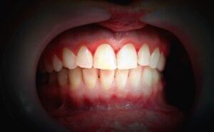 bleeding gums in washington dc