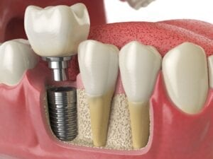 affordable dental implants in washington dc
