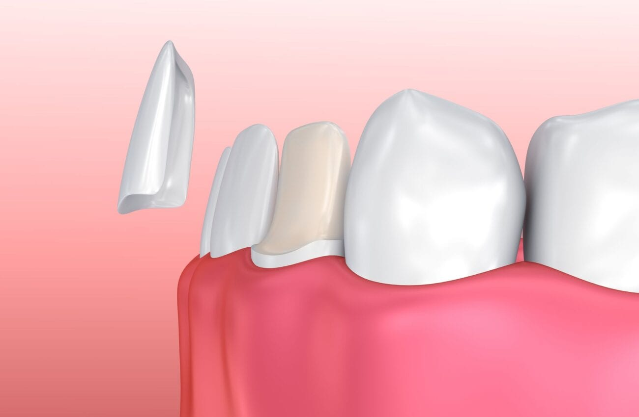 porcelain veneers dentist washington dc